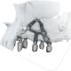 Implantologia iuxta-ossea con l'IMPIANTO SUBPERIOSTALE