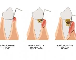 Parodontite: come si cura?